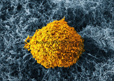 2nd Place – Breast Cancer Cell Meets CNT Sponge