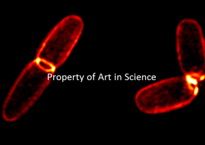 DIVIDING BACTERIAL CELL