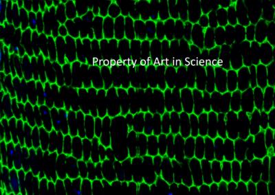 MATURATION OF FIBER CELLS IN OCULAR LENS